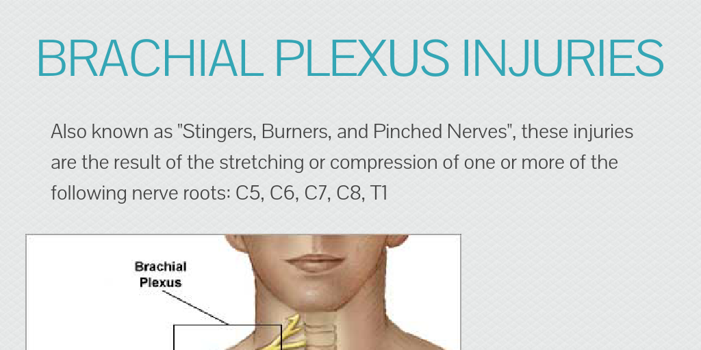 Brachial Plexus Injuries By Adschlem Infogram